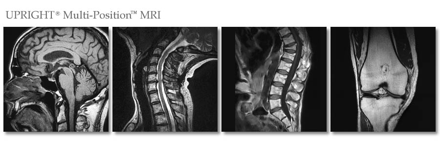 Stand-Up MRI of Queens, NY